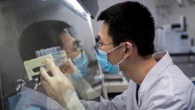 Photo of Estudio revela que el coronavirus podría invadir el cerebro