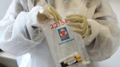 Photo of AstraZeneca registra un segundo voluntario enfermo
